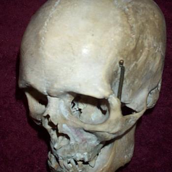 Old Medical Skull