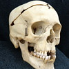 Genuine Human Medical Teaching Skull