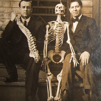 Skeleton in early RPPC image
