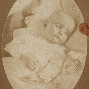 Infant Post-Mortem by W.F. Carnall of Rochester, NY