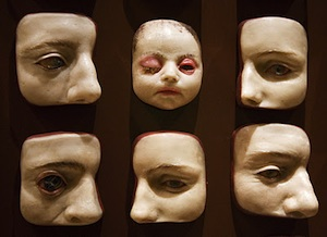 Pathological models from the Mütter Museum. (Via Morbid Anatomy)