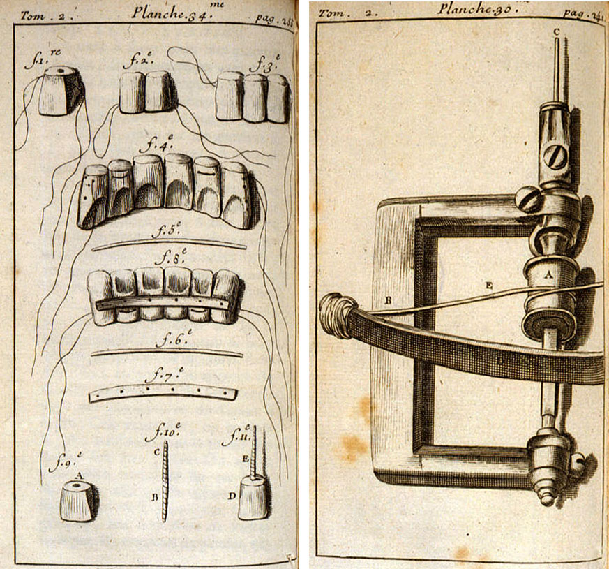Diagrams from Fauchard's 1728 book on dentistry showing methods of tooth restoration (left) and a dental drill (right).