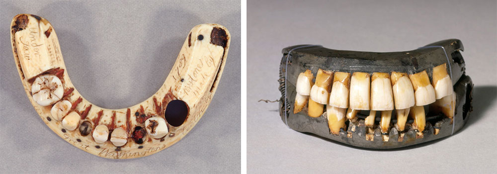 Left, this lower set of Washington's ivory dentures included a hole for his last remaining tooth. Via the New York Academy of Medicine. Right, this complete set of Washington dentures was made from animal and human teeth, ivory, and lead. Via the Mount Vernon Estate.