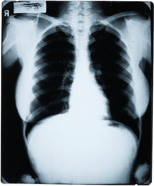 "Yes, it is legal to own a copy of Marilyn Monroe's 1954 chest X-ray. This one sold for $4,687. (Via ""Mantiques"")"