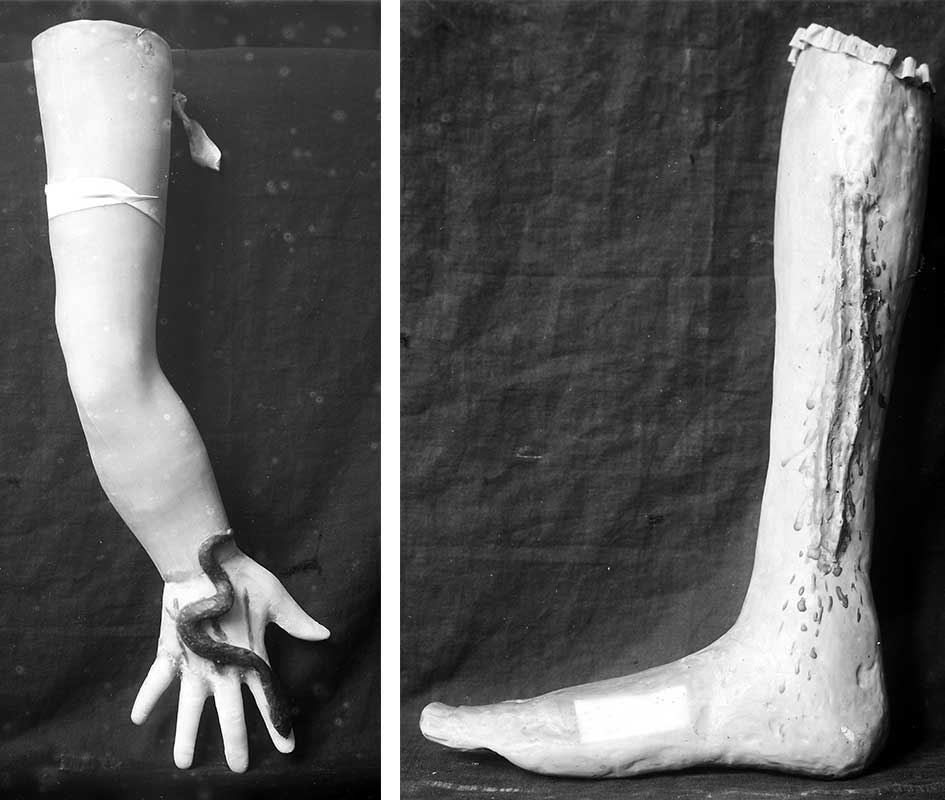 Two wax ex votos showing injuries to the arm and leg. Courtesy the Wellcome Library, London.